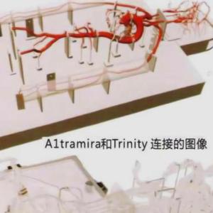介入手术血管模型